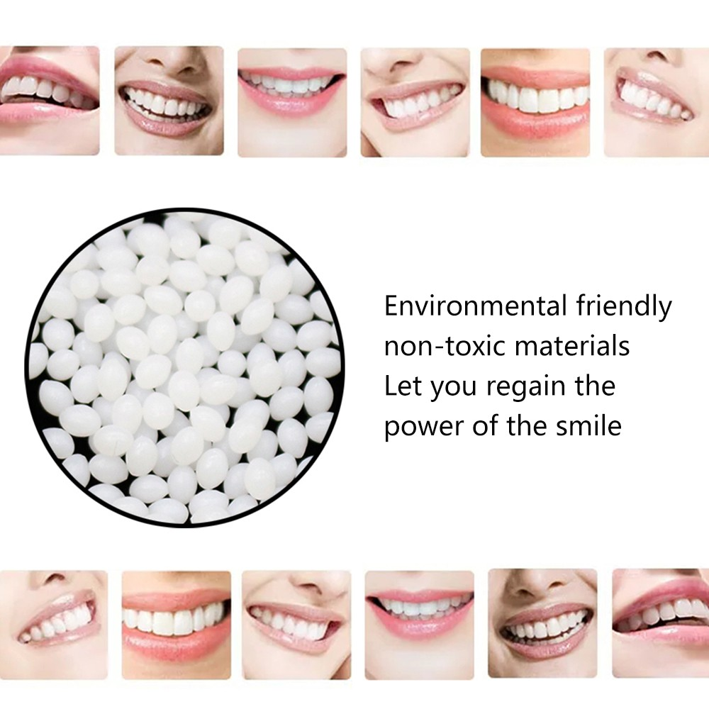 Temporary Tooth Repair Kit Teeth And Gaps FalseTeeth Solid Glue Denture Adhesive Dental Restoration 10g Denture Solid Glue #40