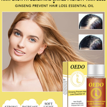 OEDO New 20ML Ginseng Hair Growth Essence Preventing Hair Lo