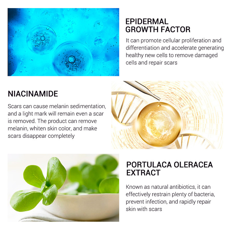 30g Anti Acne Treatment Cream Blackhead Scar Stretch Marks Removal Skin Care Face Repair Whitening Moisturizing Cream MZ1 in Day Creams Moisturizers from Beauty Health