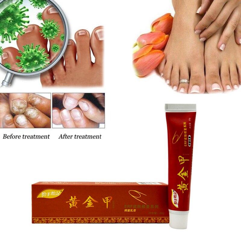 Лучшие грибок ногтей Крем для лечения онихомикоз паранихия противогрибковые инфекция ногтей борется с бактерий и грибков естественно