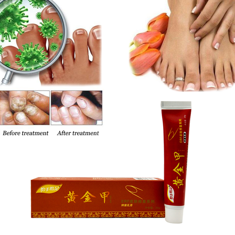 Best Fungus Nail Treatment Cream Onychomycosis Paronychia Anti ...