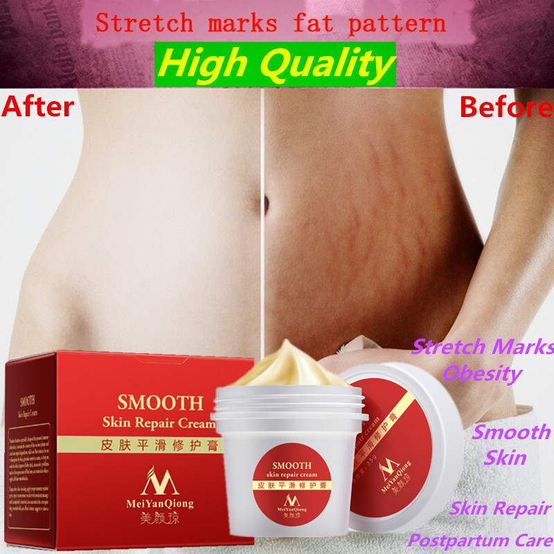 Smooth font b Skin b font Cream For Stretch Marks Scar Removal To font b Maternity