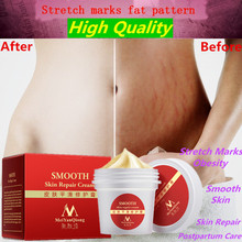 Smooth Skin Cream For Stretch Marks Scar Removal To Maternity Skin Repair Cream Remove Scar Care Postpartum