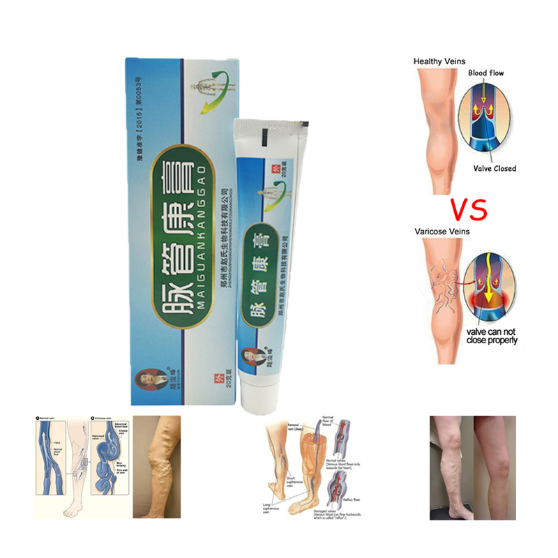 Chinese Natural Herbal Cream Varicose Vascular Inflammation Treating Massage Ointment Anti Foot Leg Cure Varicose Veins