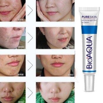 against black dots cream scar removal facial blackhead acne skin care treatment, bleaching cream Health & Beauty