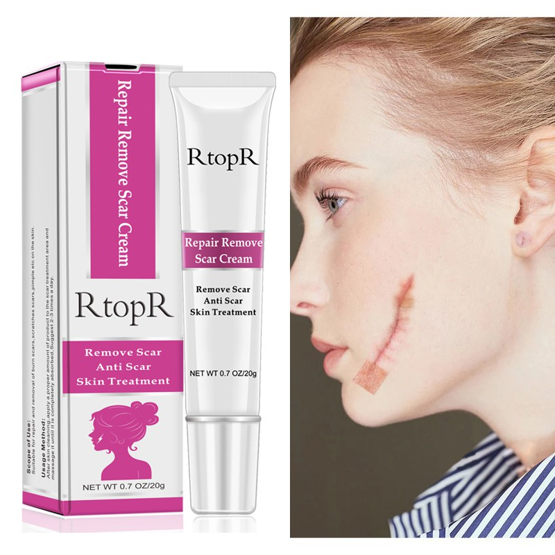 Acne Scar Stretch Marks Remover Cream Skin Repair Face Cream Acne