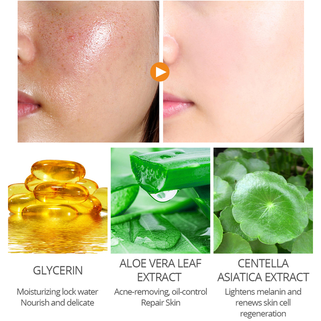 Gel Face Mask Salicylic Acid Perfecting Face Cream Shrink Pores Removing Acne3