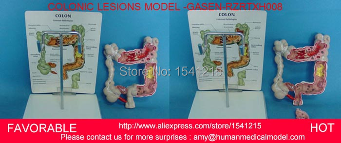ANATOMY RECTUM PATHOLOGIES MODEL,ORGAN ANATOMICAL MODEL OF HUMAN LIVER MEDICAL TEACHING COLONIC LESIONS MODEL -GASEN-RZRTXH008 human anatomical body integral organ distribution skin medical teach model school hospital hi q