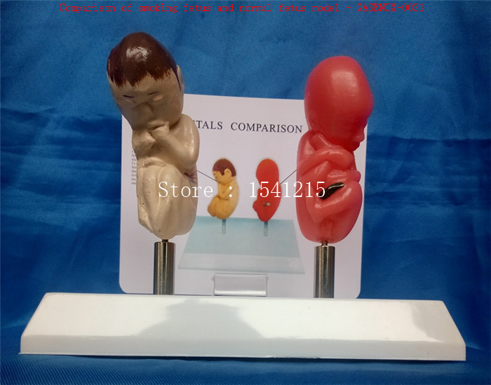 Human body model Medical teaching model Comparison of smoking fetus and normal fetus model - GASENCX-0031 iso certification nine months of pregnancy the fetus pelvis model intra abdominal month fetus model