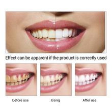 Hot LANBENA Teeth Whitening Essence Liquid Oral Hygiene Cleaning Remove Plaque Stain Brighten Tooth Whitening Oral Hygiene TSLM1