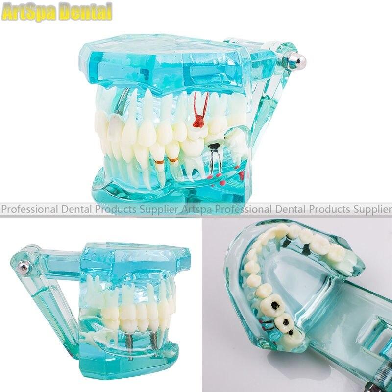 Modèle dentaire d'étude dentaire modèle de dents d'enseignement pathologique adulte