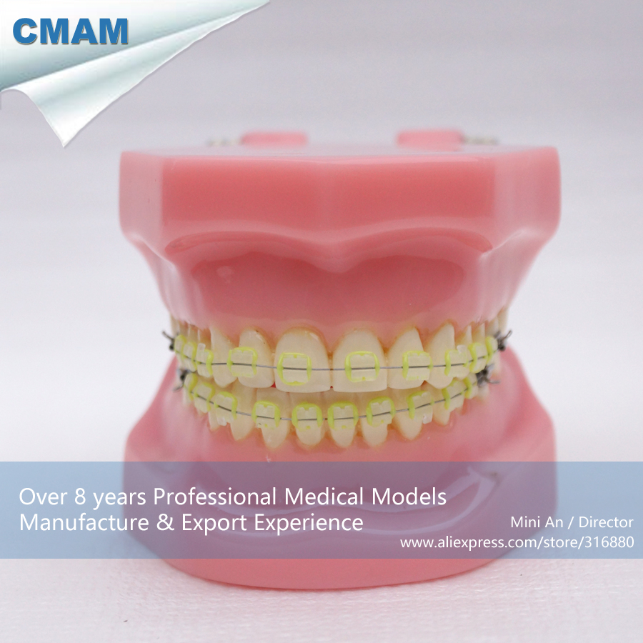 CMAM-DH203-3 Ortho Ceramic Bracket Tooth Jaw Model, ORT series Dental Model for Patient Communication cmam dental16 child dental education 3 6 age graghically developing model