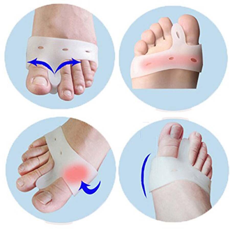 2Pcs Big Toe Bunion Splint Straightener Corrector Foot Pain Relief Hallux Valgus For Unisex  C141