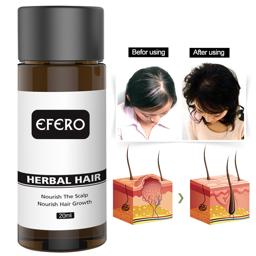 EFERO Hair Growth Essence Fast Powerful Hair Loss Product Beard Oil Growth Serum Essential Oils Hair Growth Treatment Hairs Care