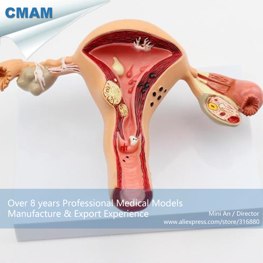 12441 CMAM-ANATOMY03 Pathological Female Uterus and Ovary Medical Anatomy Model,Medical Science Educational Anatomical Models cmam a29 clinical anatomy model of cat medical science educational teaching anatomical models