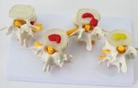 Menschlichen anatomie skelett Wirbelsäule 4 stufen lenden wirbeln modell gehirn schädel traumatische pistole grau anatomie Lehre liefert-in Medizinische Wissenschaft aus Büro- und Schulmaterial bei
