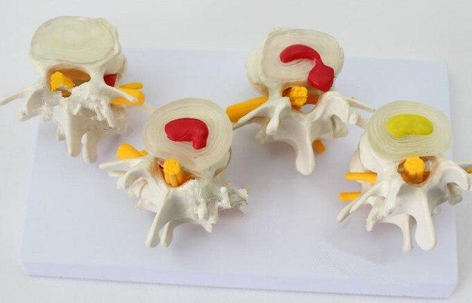 Modèle d'enseignement médical modèle d'anatomie biological4 modèle de hernie discale intervertébrale lombaire modèle de colonne vertébrale lombaire
