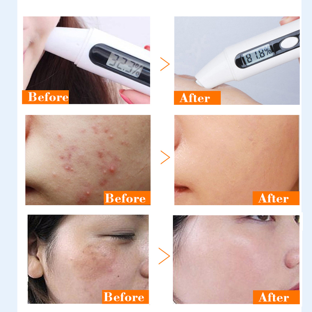 10packs Collogen Moisturizing Face Cream Skin Care Whitening Cream Lifting Firming Anti Wrinkle Serum for Face Cream Essence 4