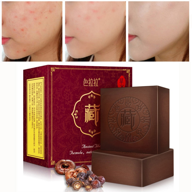Soap The Best Chinese Herbal Soap Wash Face Bath Body Male Female Removing Dampness Beautymedical Handmade Soap Makeup Remove Skin Care Health