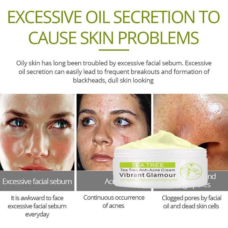 VIBRANT GLAMOUR Tea Tree Anti Acne Cream Acne Scar Face Cream Elimination Acne Scar Removal Oil Control Moisturizer Cream TSLM1