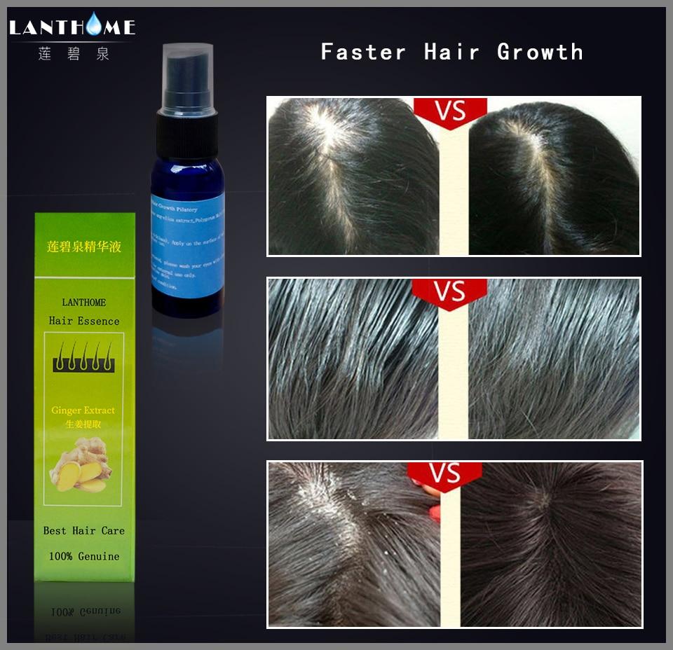Lanthome Anti Haarausfall Produkt Tonic Spray Für Haar Wachstum Alopezie Anti Haarausfall Behandlung Sunburst Nachwachsen Der Haare Flüssigkeit Yuda Haarausfall-produkte