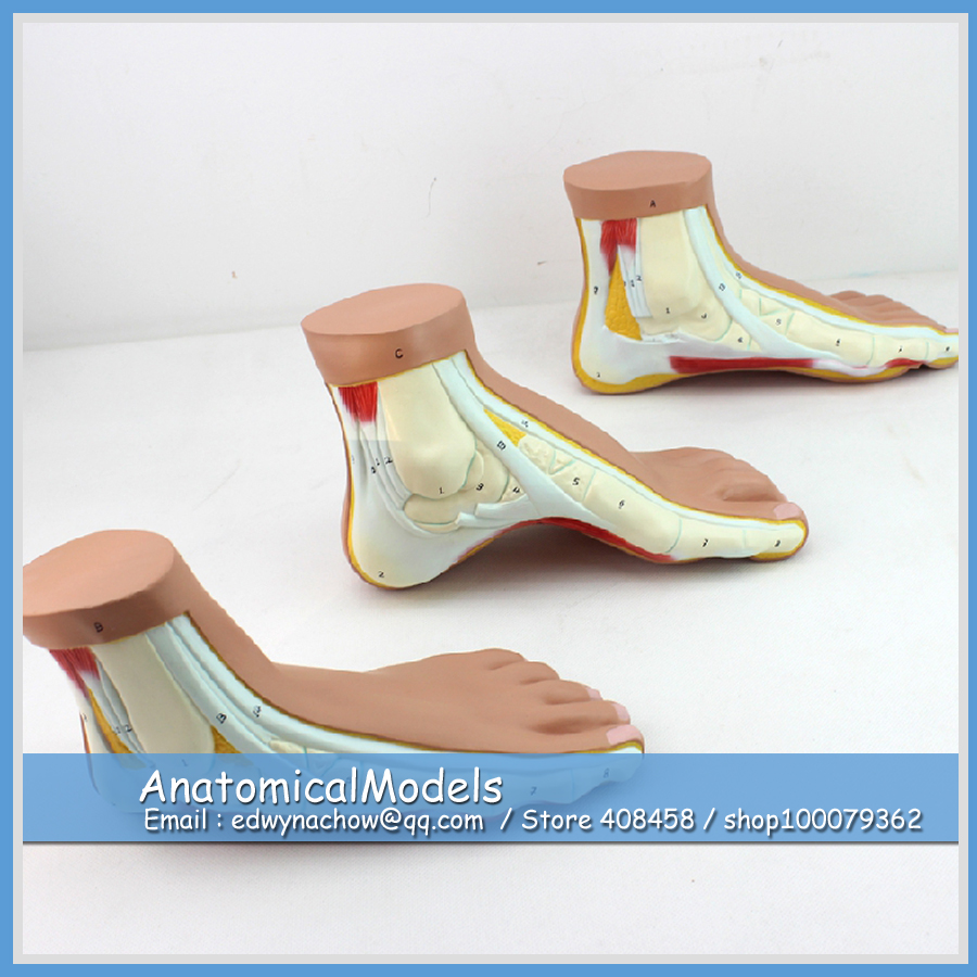 ED-MUSCLE10 Life Size Normal, Flat, Arched Foot Anatomy ,  Medical Science Educational Teaching Anatomical Models normal foot flat feet bow foot foot combined anatomical model