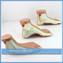 ED-MUSCLE10 Life Size Normal, Flat, Arched Foot Anatomy ,  Medical Science Educational Teaching Anatomical Models