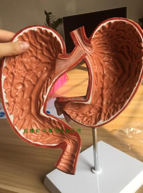 Human gastric anatomic model digestive system model gastric model with a digital removable 1.5-fold magnification of the stomachHuman gastric anatomic model digestive system model gastric model with a digital removable 1.5-fold magnification of the stomach