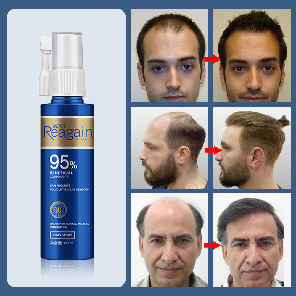 Damage-Hair Beardgrowth Oiltopicalsolutions Rootshair Careproducts Repair Hairgrowthoiltreatmentforantihairlossmen