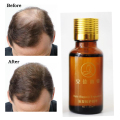 Hair Growth Essence Anti Hair Loss Products 20ml Pilatory Hair Grow Faster Restoration Dense Hair Regrowth Treatment Serum