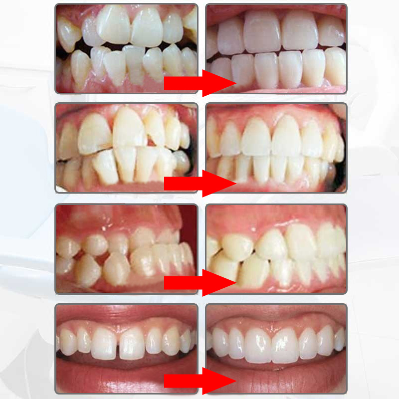 MYOBRACE dental ortodoncia dental braces Blanqueadores de dientes dental Orthotics Alineación de dientes herramienta ortodóntico retenedores
