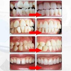 New Adulto Aparelho Ortodôntico Ortodontia Dental Dente Dentes Branqueamento Dental Ferramenta de Alinhamento Dos Dentes Retentores Ortodônticos Órteses