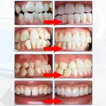 d18fe322f10 MYOBRACE dental ortodoncia dental braces Blanqueadores de dientes dental  Orthotics Alineación de dientes herramienta ortodóntico retenedores