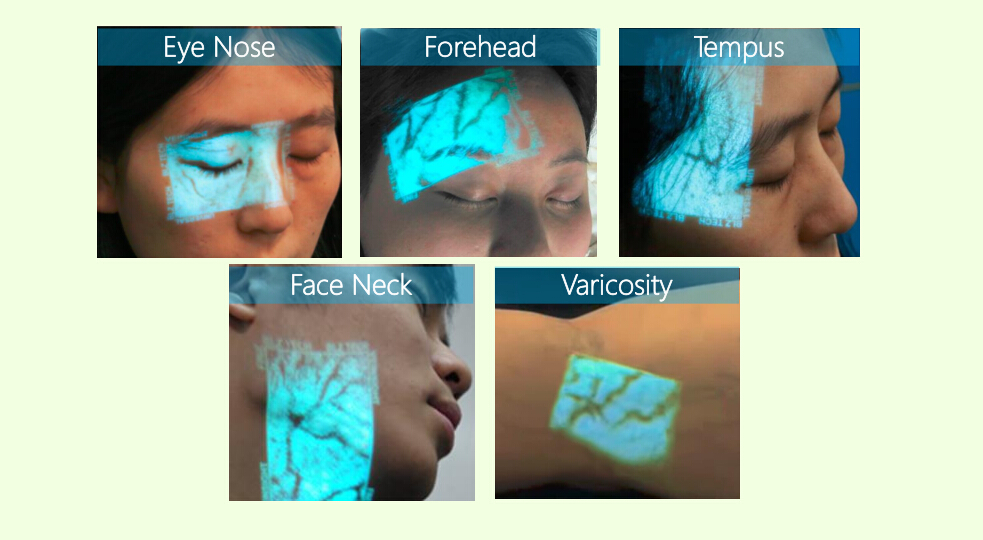 vein translucent device - Handheld Clinic Vein Finder/Scanner/Viewer/Locator/Reader