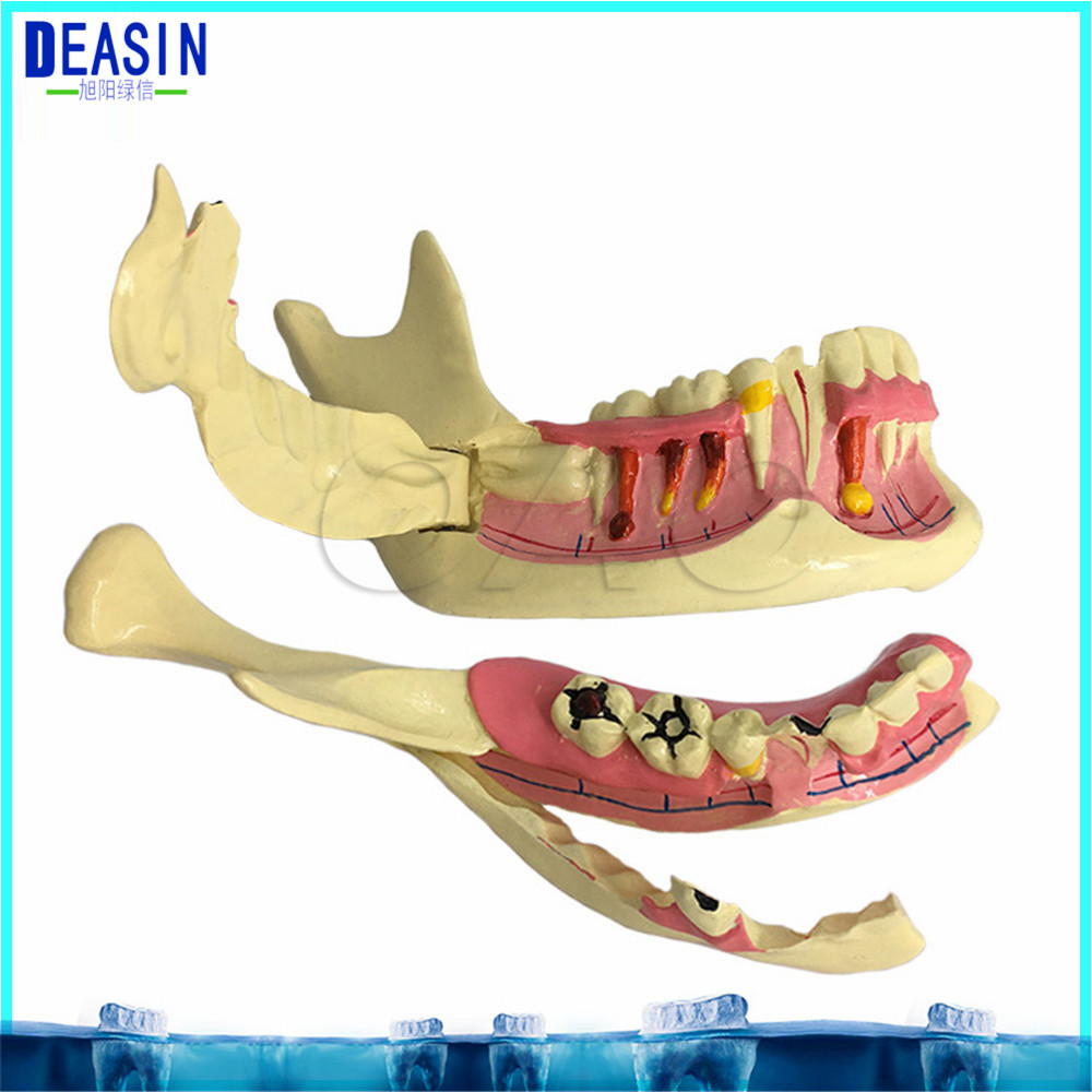 High Quality High Quality Mandibular Model for dental Communication Model dental Teaching Model transparent dental orthodontic mallocclusion model with brackets archwire buccal tube tooth extraction for patient communication