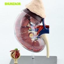 4D человеческие почки обучающая модель медицина медицинское оборудование модель игрушки для сборки головоломки