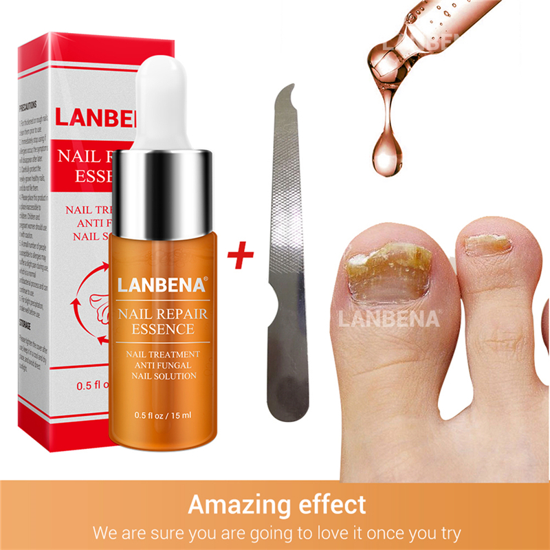 Nail Repair Essence Oils Serum Fungal Nail Treatment Remove Onychomycosis Nail Nourishing Brighten Care of hands and feet isolation of polypropylene degrading fungal isolates