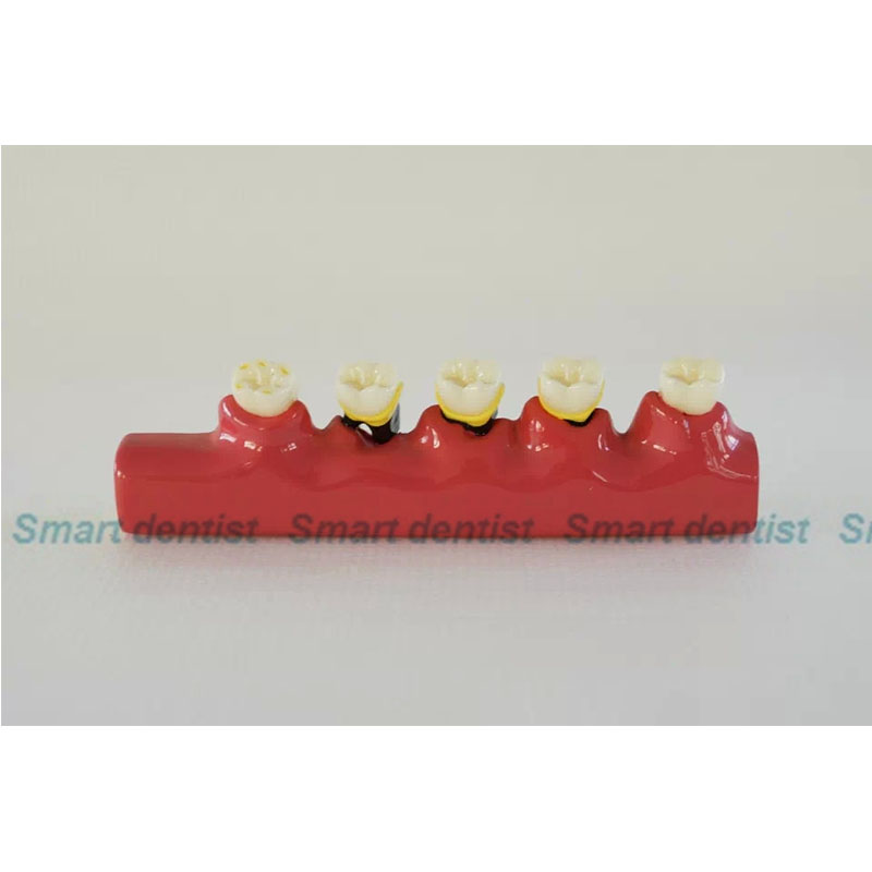 Dental Pit and Fissure Sealing Treatment Teeth Tooth Study Learn Model DEASIN shaveta kaushal and atamjit singh pal dental implants and its design