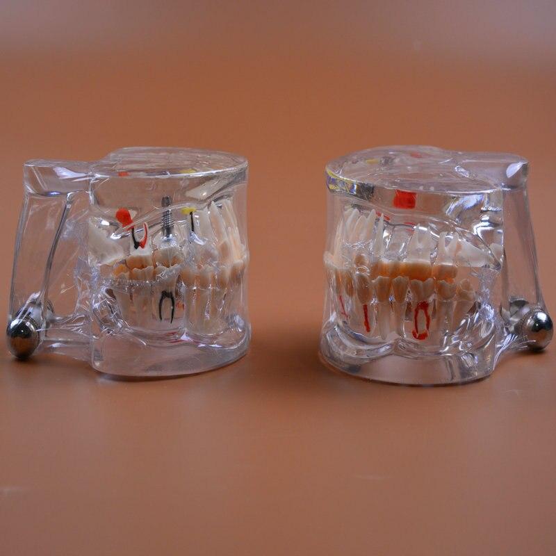 2 pcs lote modelo de ensino de odontologia modelo de patologia dental com implante odontologia cuidados