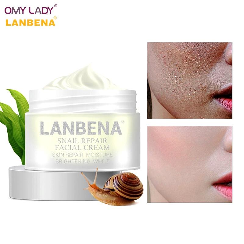 Omy Dame Lanbena Haar Wachstum Essenz Öl Haar Behandlung Flüssigkeit Behandlung Starke Leistungsfähige Gegen Haarausfall Haar Wurzel Pflege Haar- Und Kopfhaut-behandlungen