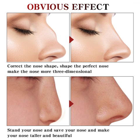 Nose Lifting Up Essence Oil Tightening Beauty Nose Care Massage Skin Care Dark Spots Remove Ance Burn Strentch Marks Scar Removal Essence TSLM1 Islamabad