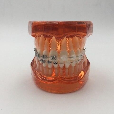alta qualidade 2016 novo modelo de ortodontistas com metal suportes ceramicos ortopedia dentista de metal