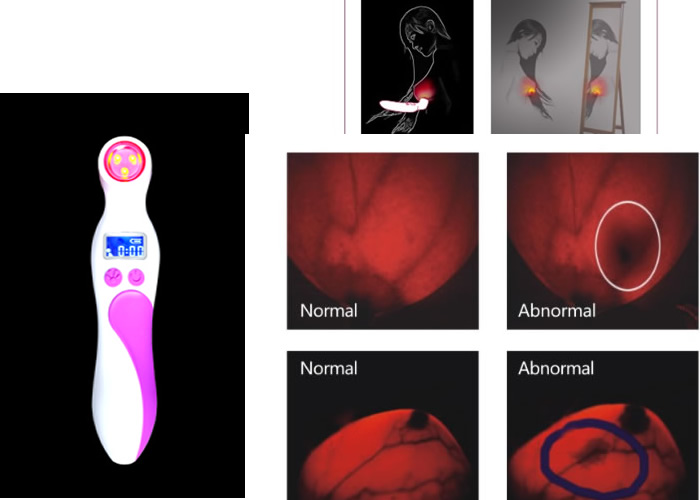 Female Household Self Exaination Breast Cancer Detection Device With 580nm - 640nm Wavelength what is breast examination checking for lumps in breast by early breast cancer detection device