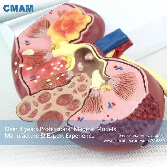 Tienda Online 12432 CMAM-KIDNEY03 Humano Anatomía Modelo Riñón ...