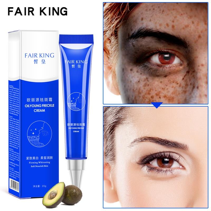 Powerful Whitening Freckle Cream 20g Remove Melasma Acne Spots Pigment Melanin Whitening Moisturizing Skin Care TSLM2