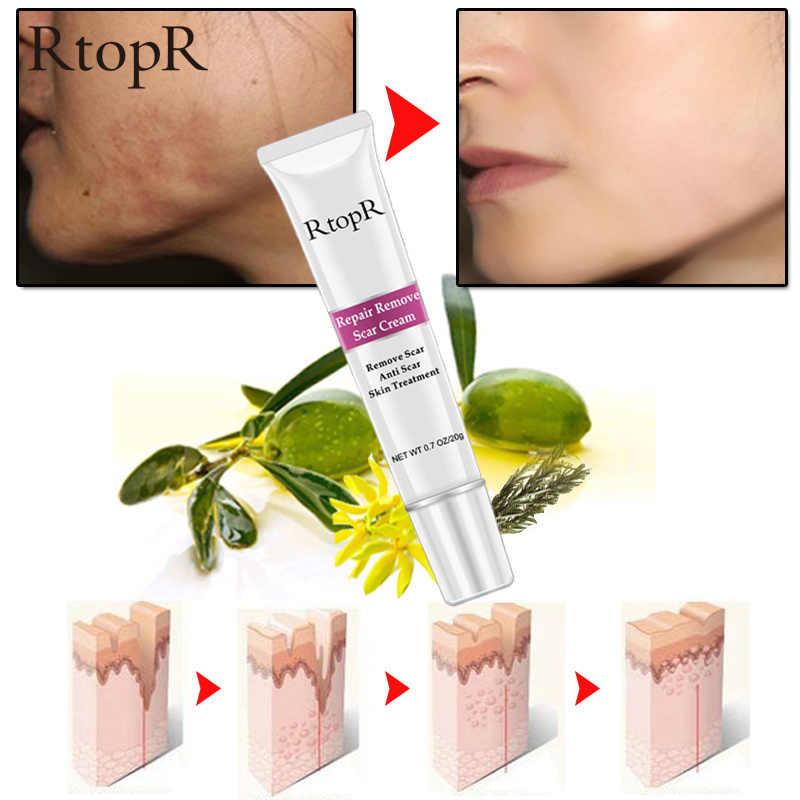 Acné cicatrice vergetures dissolvant crème réparation de la peau crème pour le visage acné taches traitement de l'acné point noir crème blanchissante soins de la peau TSLM1