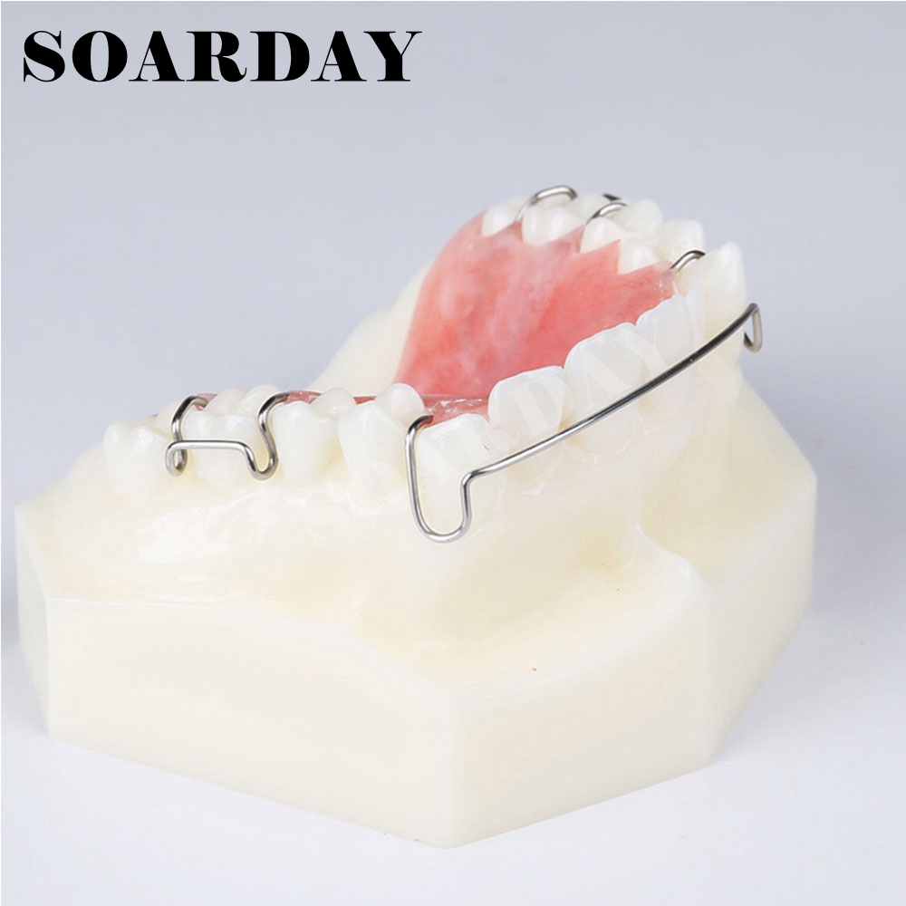Dental Retainer Demonstration Model Orthodontics Treatment Model dental retainer demonstration model orthodontics treatment model