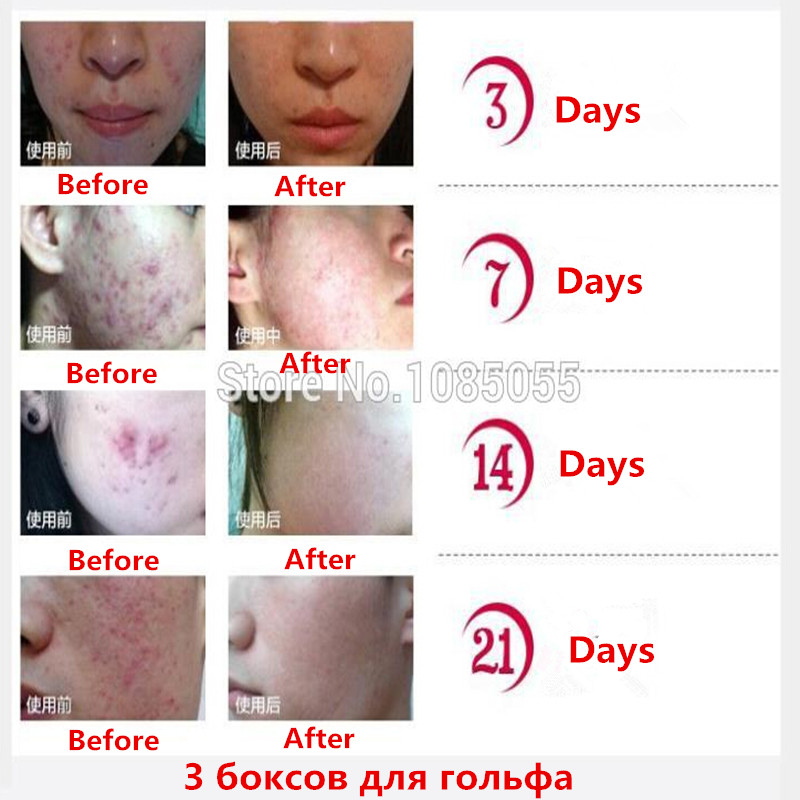 Nuobisong Lanbena Face Anti Care Acne Treatment Cream Scar Removal