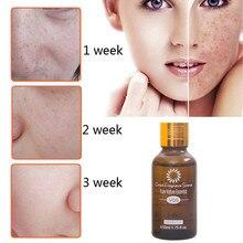 Новое натуральное эфирное ароматическое масло с дефектами, пигмент для разложения, увлажняющий отбеливающий, против морщин, для ухода за кожей