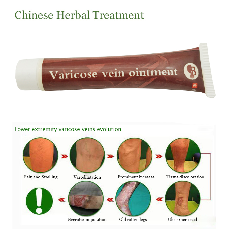 Image 2 - 10pcs Varicose Veins Treatment Ointment Vasculitis Phlebitis Angiitis Inflammation Blood vessel Rotten legs Varicose Veins Cream-in Patches from Beauty & Health
